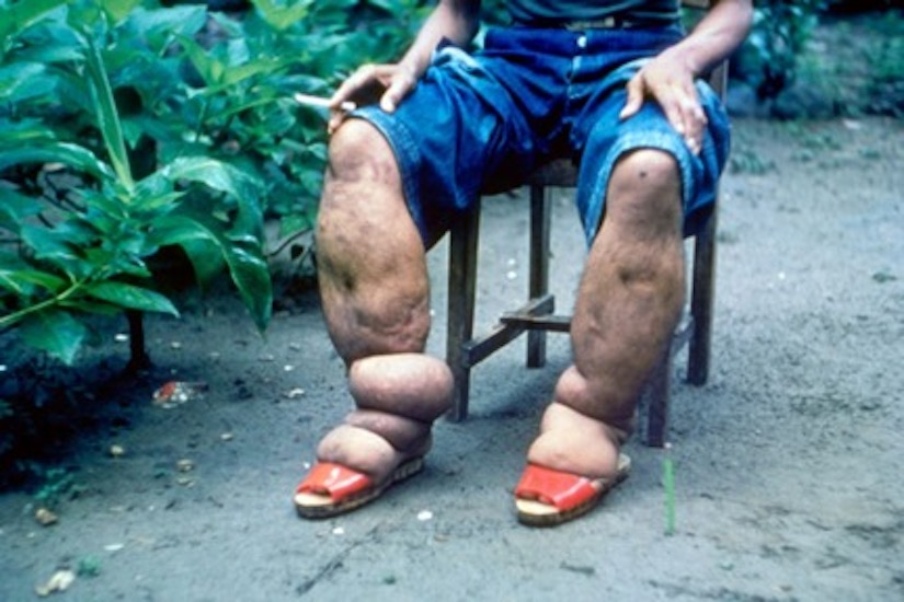 Swollen legs of man with elephantiasis.